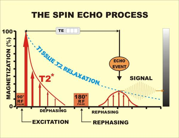 the spin echo process magnetized protons Transverse magnetization  plasma spins WOW! signal UFO space travel wormholes